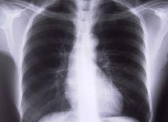 Rimini. Affetta da tubercolosi una minorenne. Esclusi altri casi