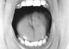 A Cesena da tutto il mondo per imparare le ultime novità sulle corde vocali.