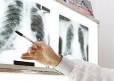 Emilia Romagna. Malati fibrosi polmonare senza cure: il PdL chiedono i motivi.